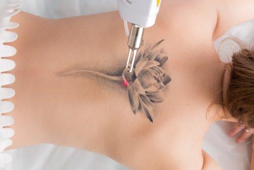 odstranenit tetovanie