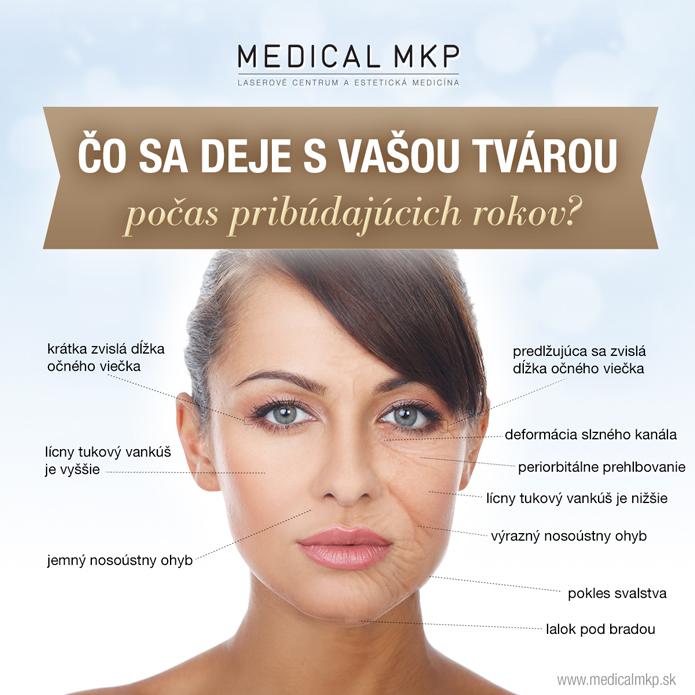 FB_rejuv_infograf(3)